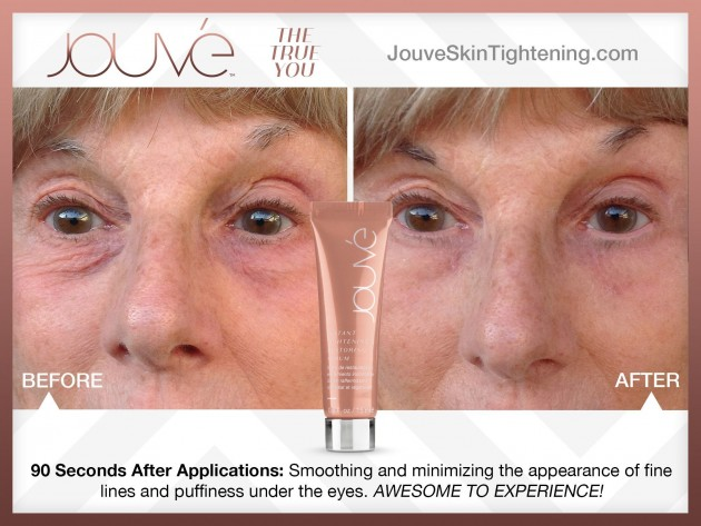 jouve_heshie_before_and_after-1